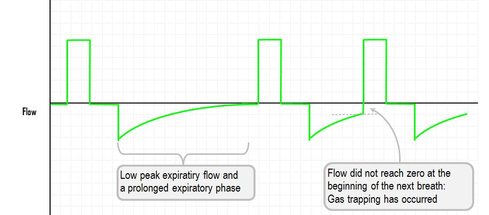 Flow Time Curve Gas Trapping